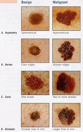 Skin Cancer Self Check Laub Dermatology